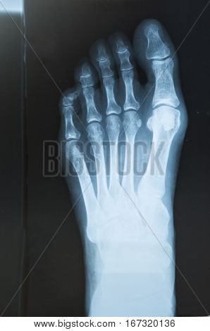 X-ray of the foot with valgus breach bones