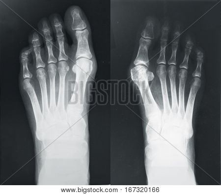X-ray of the foots with valgus breach bones