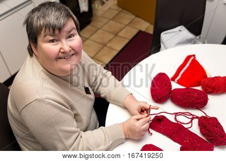Mentally Disabled Woman Is Crocheting, Handiwork For A Alternative Therapy