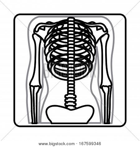 monochrome silhouette with x-ray of bones vector illustration