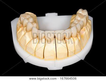 Dental ceramic bridge on isolated black background