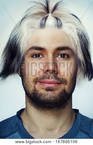 Young man portrait with dogs hair on head. Hair transplantation and problems concept.
