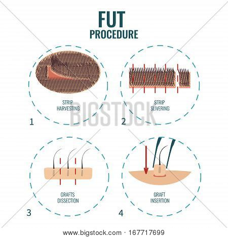 Follicular unit transplantation procedure stages. FUT hair loss treatment steps. Alopecia infographic medical design template. Clinics and diagnostic centers concept design. Vector illustration.