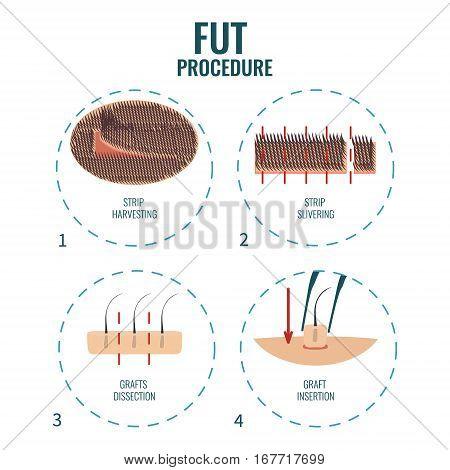 Follicular unit transplantation procedure stages. FUT hair loss treatment steps. Alopecia infographic medical design template. Clinics and diagnostic centers concept design. Vector illustration.
