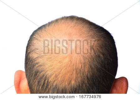 Head of man lose one's hair, glabrous on his head for elderly man poster