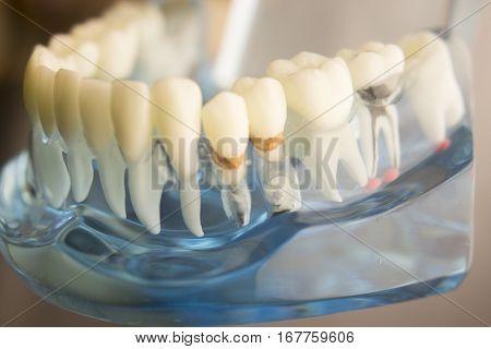 Dental Teeth Plaque Model