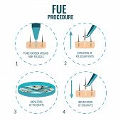 Follicular unit extraction procedure stages.  FUE hair loss treatment steps. Alopecia infographic medical design template for transplantation clinics and diagnostic centers. Vector illustration. poster
