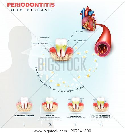 Complications Of Gum Disease Periodontitis.  Bacteria From Inflamed Gums Can Enter In To The Blood S