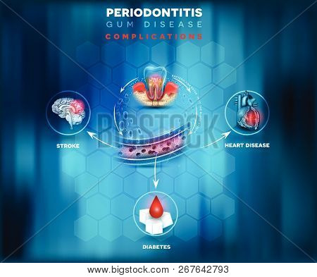 Periodontitis Complications, Bacteria Enter In To The Blood Flow And There Is A Risk Of Stroke, Diab