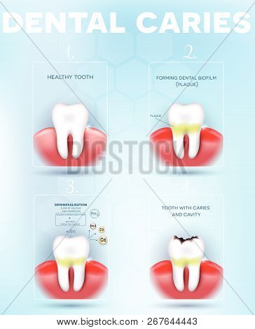 Tooth Decay, Dental Caries Formation Detailed Diagram, Dental Plaque, Loss Of Calcium, Phosphate And
