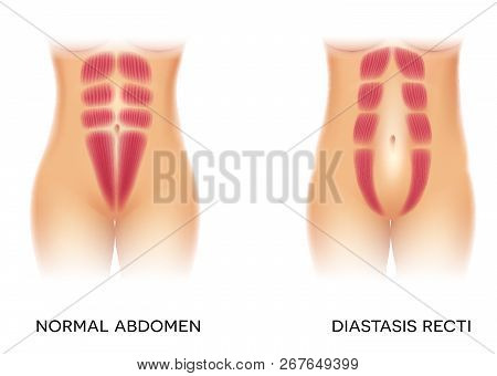 Diastasis Recti Also Known As Abdominal Separation, It Is Common Among Pregnant Women. There Is A Ga