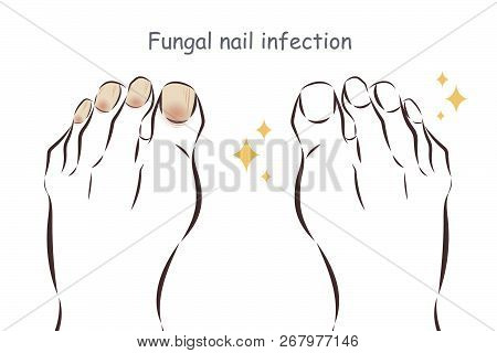 Feet With Fungal Nail Infection Before And After Treatment