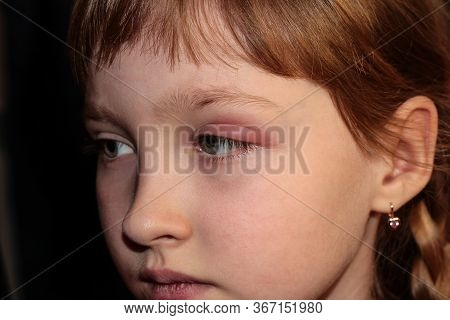 Barley In The Eye. A Child With Barley In His Eye. Inflammation Of The Eyelid. Human Disease.
