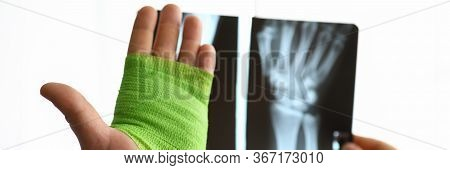 Close-up Hand Wrapped In Bandage And X-ray Hand. Selection Bandages From Assortment Necessary Length