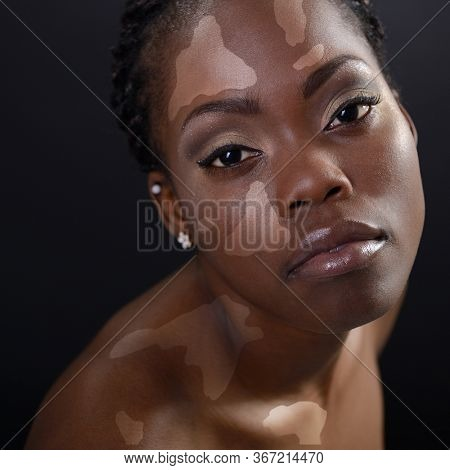 Young fresh beautiful woman. Beauty portrait of female fashion model with white pigmentation. Diversity tolerance concept. Pretty young african american woman looking at camera with vitiligo skin.