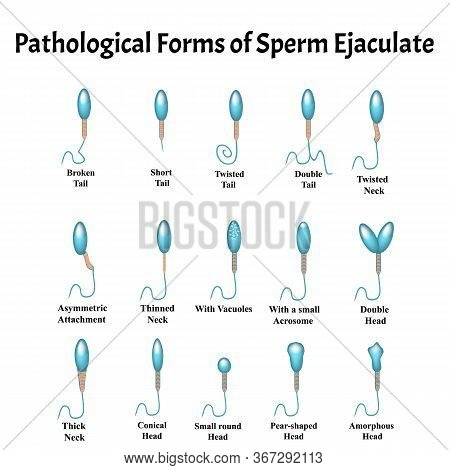 Pathological Forms Of Sperm In The Ejaculate. Male Infertility Oligospermia. Spermogram. Sperm Patho