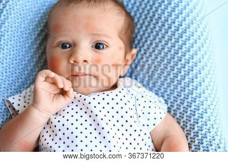 Little Child With Red Rash On Light Blue Plaid, Top View. Baby Allergies