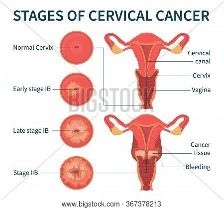 Flat Vector Illustration Of Stages Of Cervical Cancer Including Normal, Early, Late Stage Ib And Sta