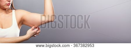 Liposuction Arm Surgery. Woman Body Fat And Skin Pinching