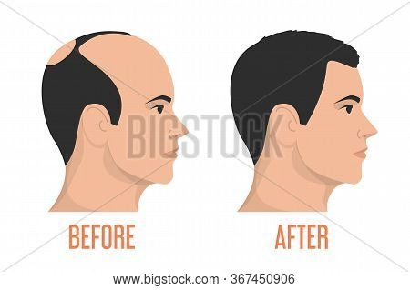 Hait Transplantation Before And After Vector Isolated
