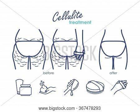 Vector Line Illustration Of Cellulite Treatment. Dry Brush Massage, Anti-celullite Cream, Body Wraps