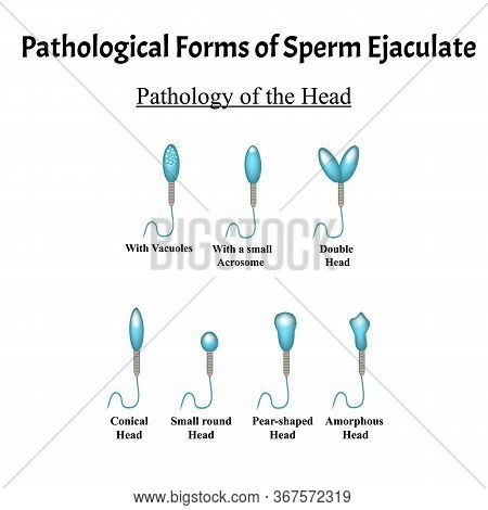 Pathological Forms Of Sperm In The Ejaculate. Male Infertility Oligospermia. Spermogram. Pathology O
