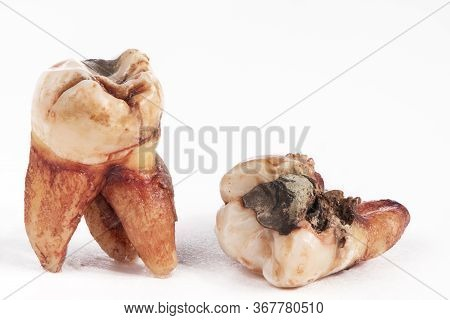 Two Extracted Molar Teeth With Caries Decay And Filling Isolated On White Background. Macro Photogra