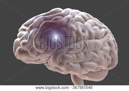 Brain Stroke, Headache, Migraine And Other Brain Diseases Conceptual 3d Illustration