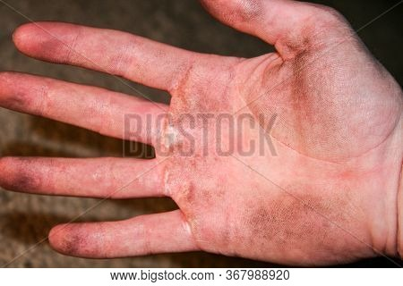 Mens Dirty Hand. Corns On Their Hands. Mens Dirty Hand