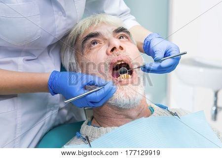 Senior male with bad teeth. Examination at the dentist. Dental diseases curing methods.