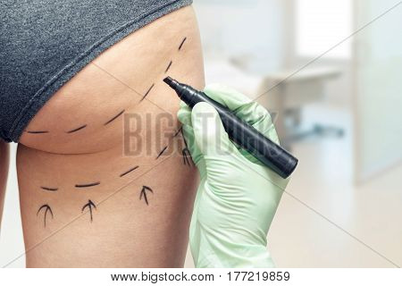 plastic surgeon marking womans body for plastic surgery