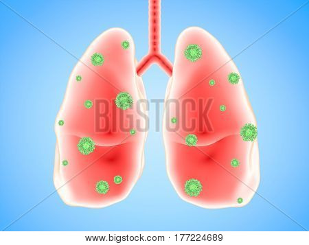 Lung Disease With Bacteria Cells
