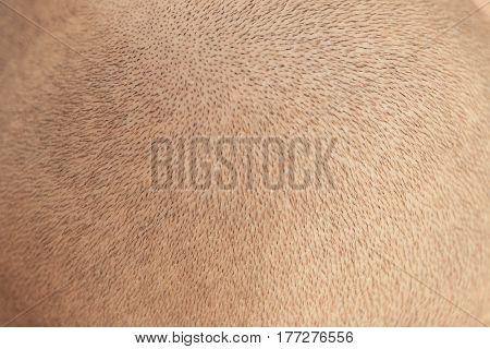 Hair loss concept. Head of man, closeup