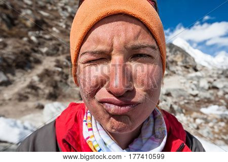 Trekker With Burned Skin On Face Is Smiling At Camera In Khumbu Valley On A Way To Everest Base Camp