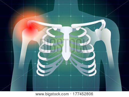 Shoulder bone have a red signal on medical monitor background. Illustration about diagnose body injury.