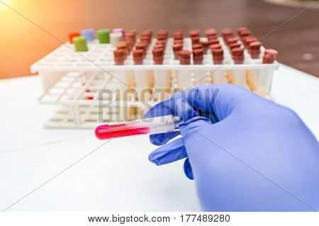 Close-up the blood in test tubes and investigation form in laboratory.
