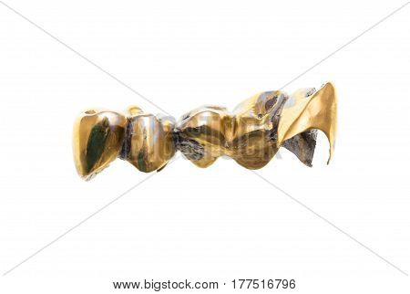 metal teeth implants on a white background .