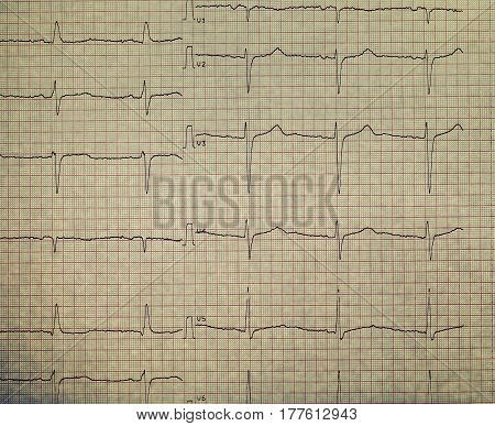 ECG on the plotting paper. Medical background