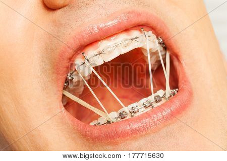 Man with dental rubber strings for correction of teeth painfully open mouth