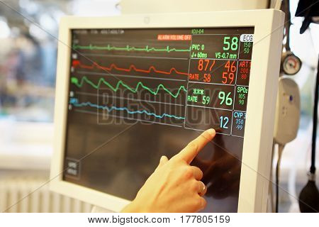 Monitor of vital signs heart rate pulse low arterial tension of ill patient at ICU (intensive care unit)