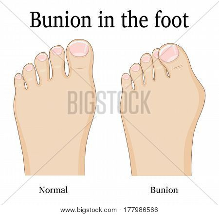 Comparison of a healthy foot and foot with hallux valgus deformity (Bunion)