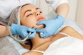 Dermabrasion cheekbones girl. Machine cosmetology. Spa. Facial Rejuvenation. Mechanical peeling skin. poster