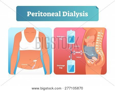 Peritoneal Dialysis Vector Illustration. Labeled Scheme With Method To Exchange Fluids After Surgery