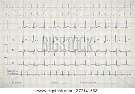 Ecg (cardiogram) Chart Image Of Medical Patient Illustration