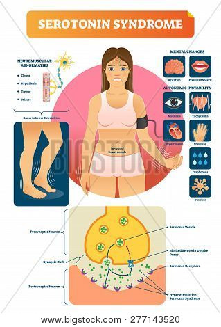 Serotonin Syndrome Vector Illustration With Medical Labeled Symptoms Scheme. Educational Diagram Wit