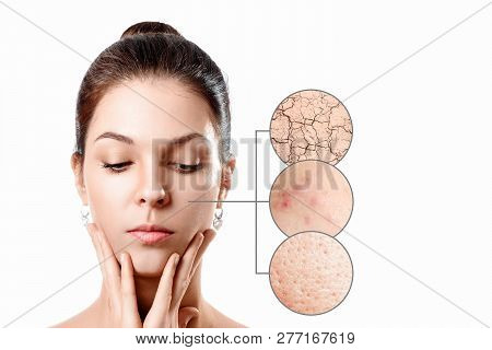 Young Woman With Acne, Dry Skin, Black Dots Skin In Zoom Circle . Skin Care Concept. Young Girl, Bea
