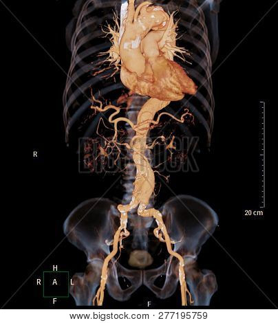 Ct Angiography Of Abdominal Aorta 3d Rendering Image With X-ray Image Show Aneurysm Of Abdominal Aor
