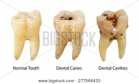 Normal tooth , Dental caries and Dental cavity with calculus . Comparison between difference of teeth decay stages . White isolated background . Front side view . poster