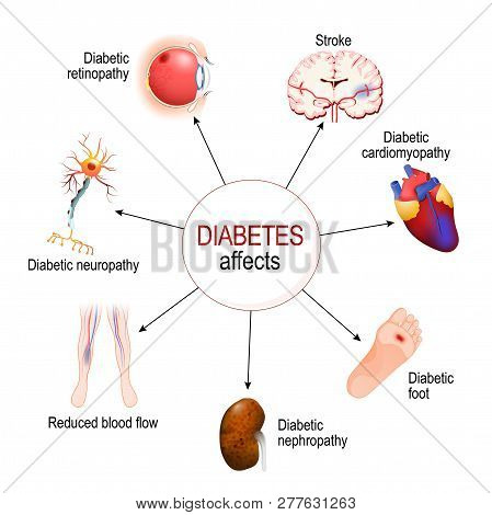 Diabetes Affects. Complications Of Diabetes Mellitus: Nephropathy, Diabetic Foot, Neuropathy, Retino