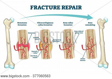 Fracture Repair As Educational Bone Remodeling And Formation Stages Vector Illustration. Labeled Str